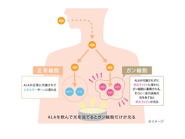 ALAを飲んで光を当てるとガン細胞だけが光る