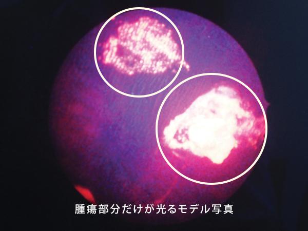 腫瘍部分だけが光るモデル写真
